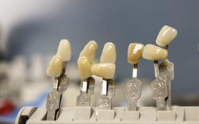 Piękne urodziwe zęby także niesamowity uroczy uśmieszek to powód do płenego uśmiechu.